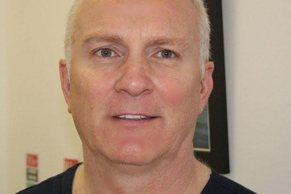 Dr. Bernard Murphy, BDS NUI