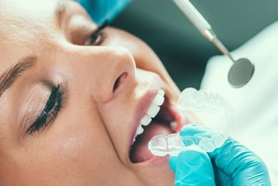 Orthodontic Dental Treatments